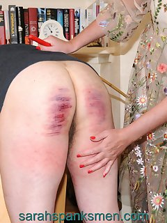 <!–-IMAGE_COUNT-–> of A VERY PAINFUL EXPERIENCE
